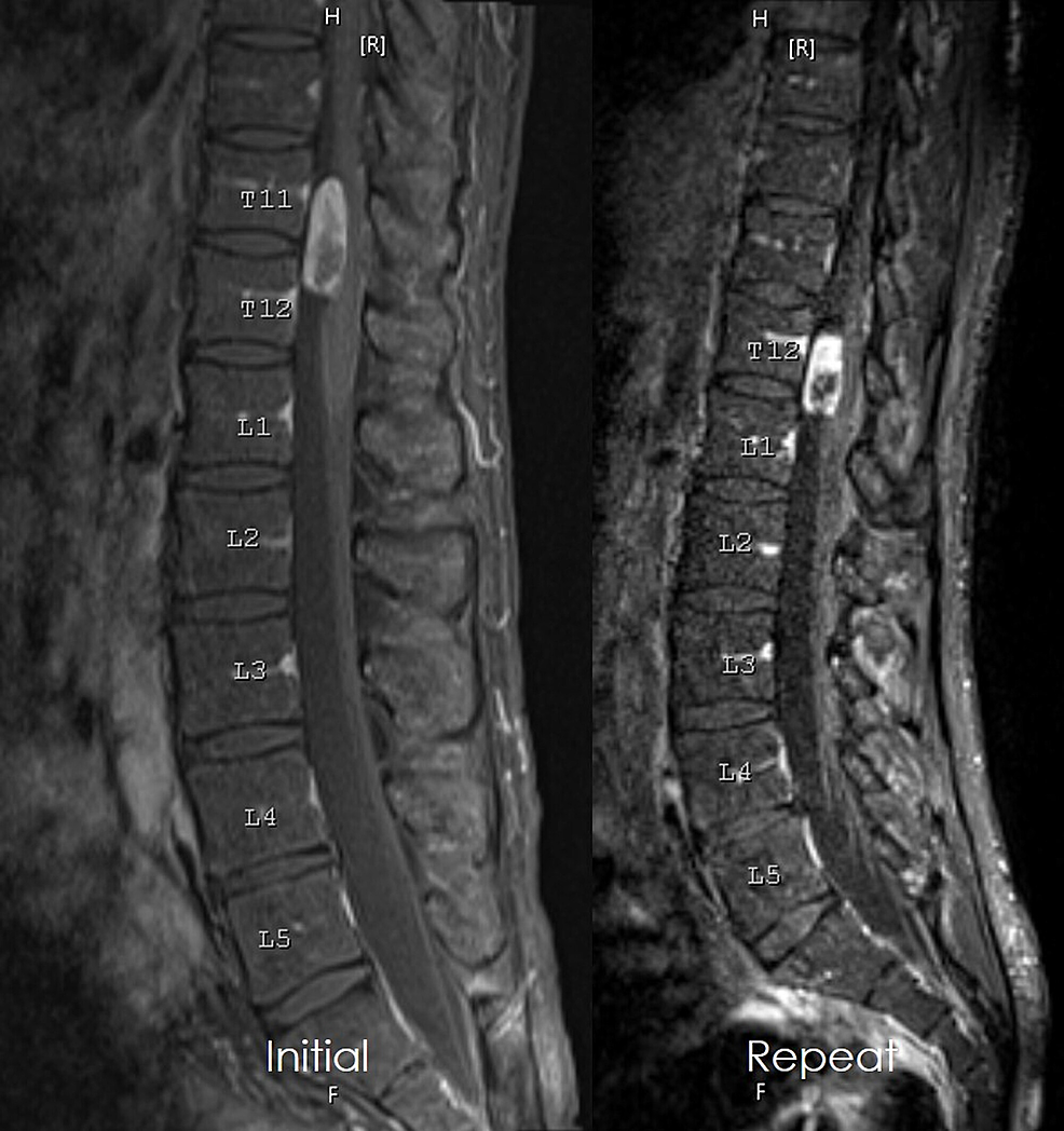 Cureus Mobile Schwannoma Of The Lumbar Spine A Case Report And