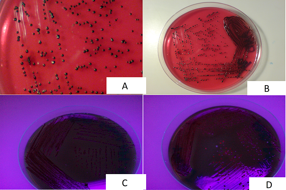 A-and-B:-Dark-Pigmented-Colonies-of-Porphyromonas-Gingivalis,-C:-Non-Fluorescent-Colonies-of-Porphyromonas-Gingivalis,-D:-Fluorescent-Colonies-of-Porphyromonas-Asaccharolytica