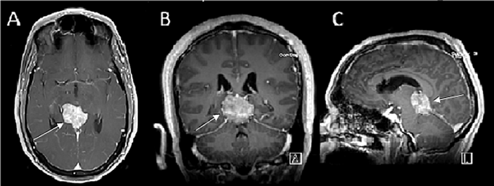 Gadolinium-enhanced-T1-weighted-pre-operative-magnetic-resonance-imaging-(MRI)-with-(A)-axial,-(B)-coronal-and-(C)-sagittal-view-showing-a-homogenously-enhancing-lesion,-the-region-of-the-pineal-gland.