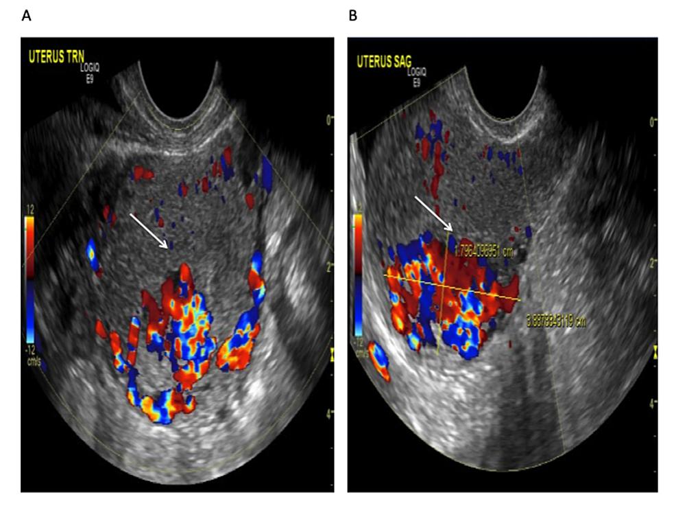 cureus acquired uterine arteriovenous malformation