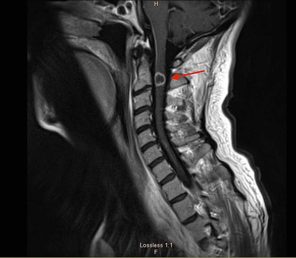 Magnetic-resonance-imaging-(MRI)-of-the-cervical-spine-showing-solitary-ring-enhancing-lesion-at-C2-(red-arrow).