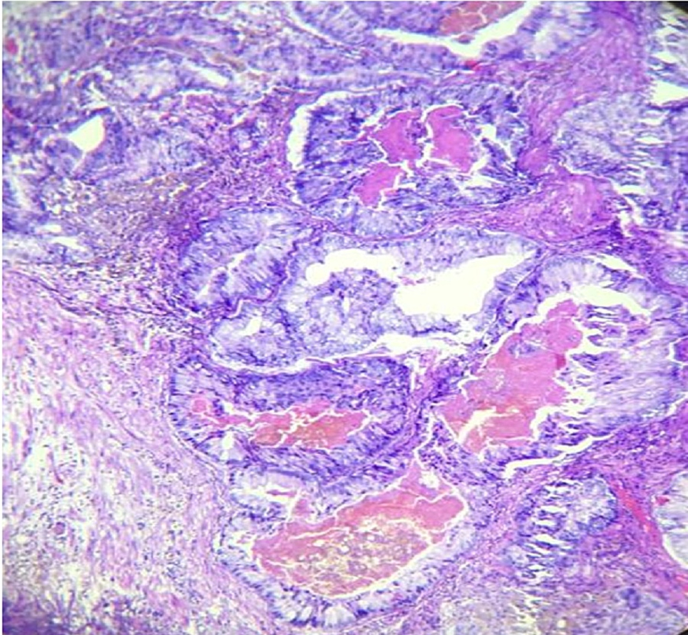 Section-shows-tumor-with-glands-as-weak-as-papillary-fronds-(H&E-100x)