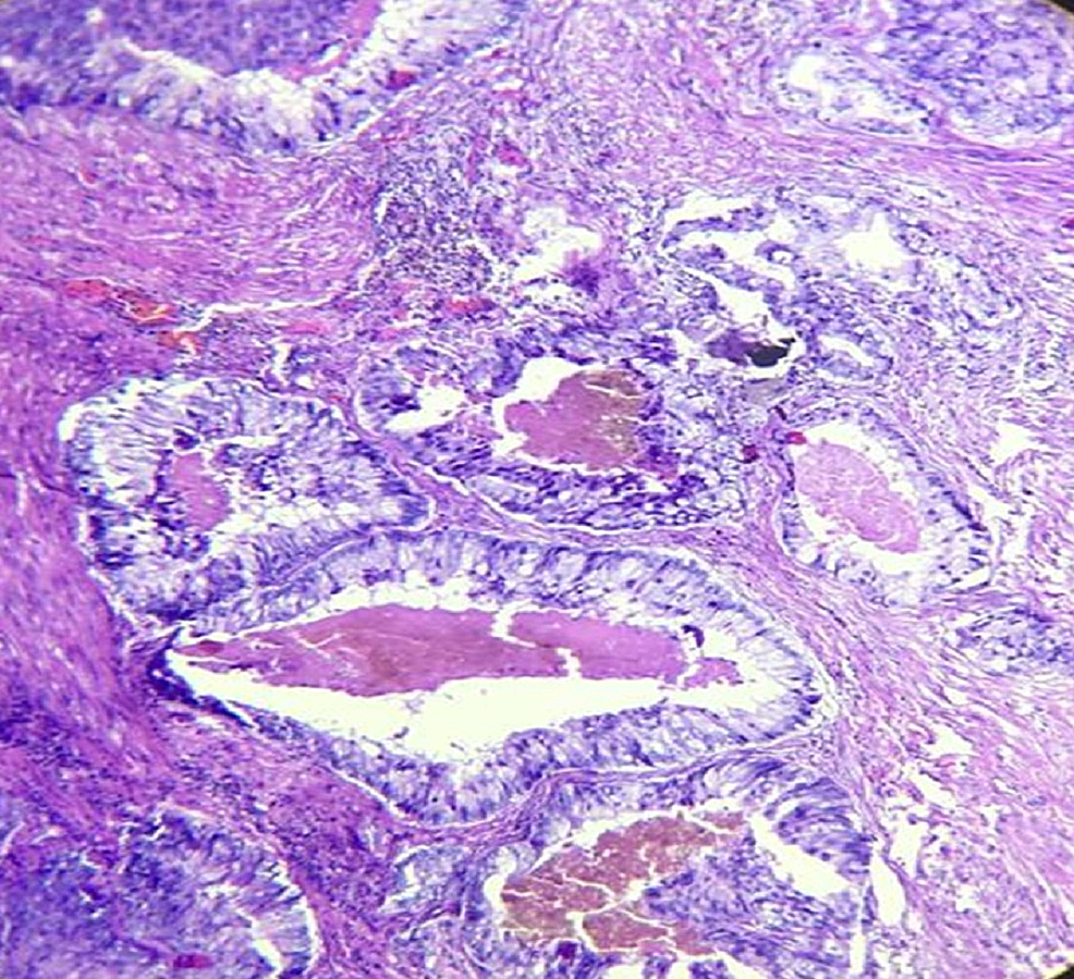 Specimen-shows-tumor-glands-with-scanty-intervening-stroma,-intraluminal-eosinophilic-secretion,-and-amphophilic-cytoplasm-with-anisonucleosis-(H&E-400x)
