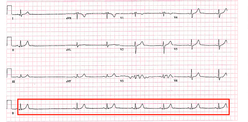 Patient's-electrocardiogram-(EKG)-revealing-a-1.8-second-sinus-pause-and-sinus-bradycardia-without-any-atrioventricular-(AV)-conduction-defects.