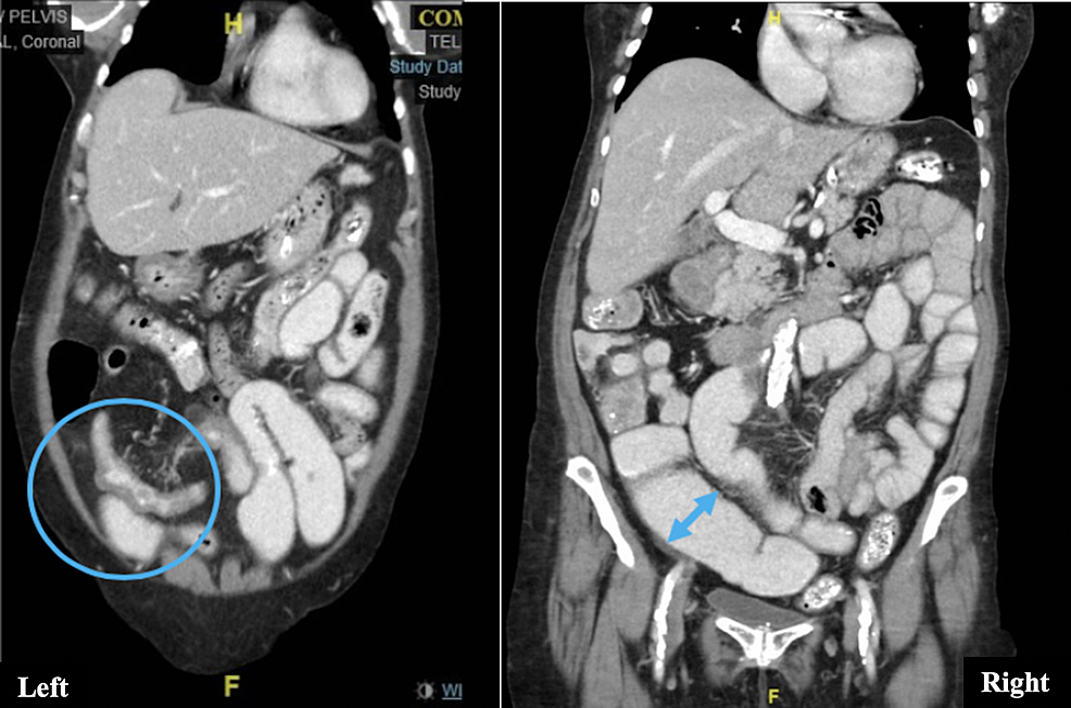Left:-Wall-thickening-of-the-distal-ileum-(circle).-Right:-Dilation-of-proximal-bowel-loops-(double-headed-arrow).