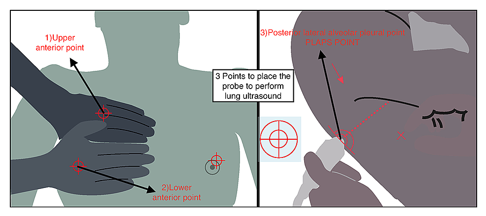 Three-basic-points-where-lung-ultrasound-should-be-performed-