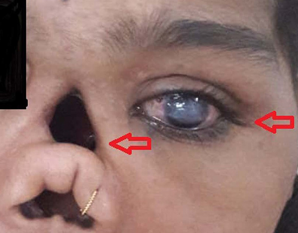 A-16-year-old-presenting-with-nasal-septum-deformity-and-haziness-of-cornea-of-left-eye.