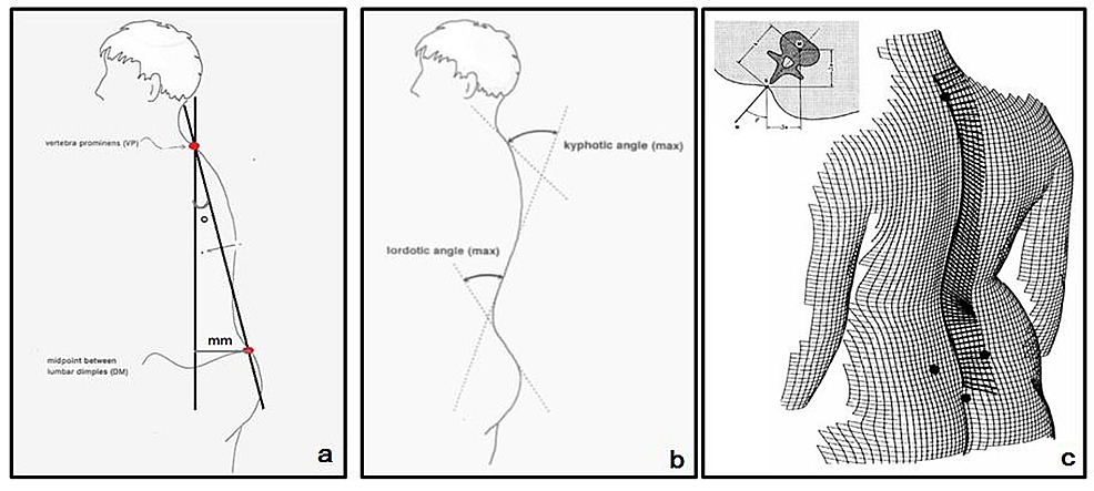 Illustration-of-the-sagittal-imbalance-(a),-the-lordotic-and-the-kyphotic-angle-(b),-the-vertebral-rotation-and-trunk-torsion-(c)