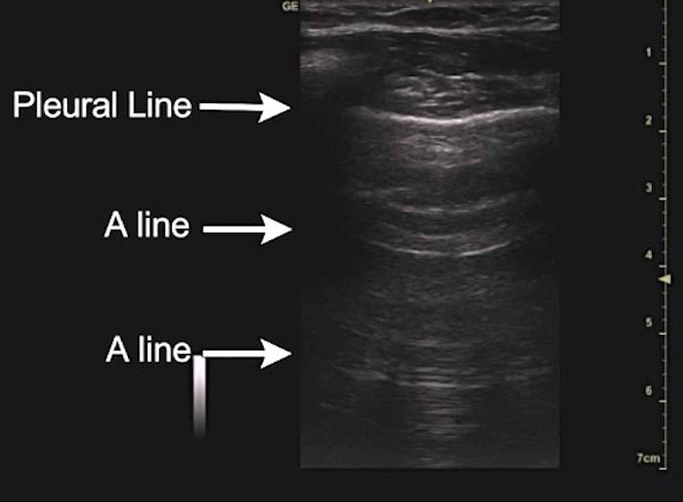 A-lines-are-an-important-component-of-the-normal-lung-ultrasound-profile-