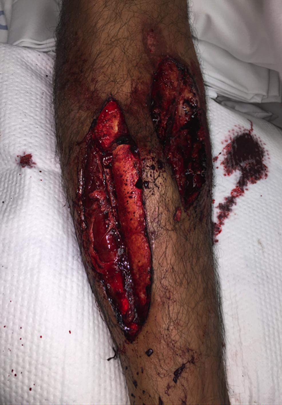 Injury-photograph
