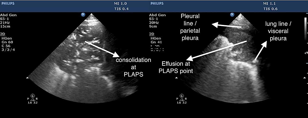 Posterior-lateral-alveolar-and-pleural-point-(PLAPS)
