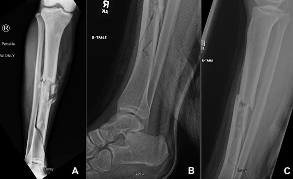 Injury-radiographs
