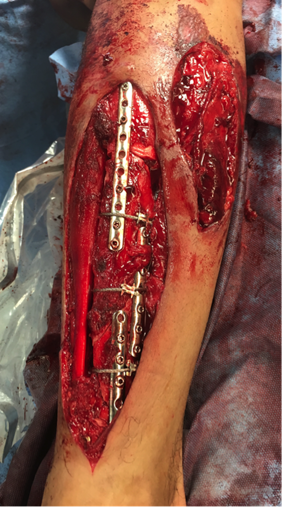 Initial-wound-debridement-and-fracture-stabilization