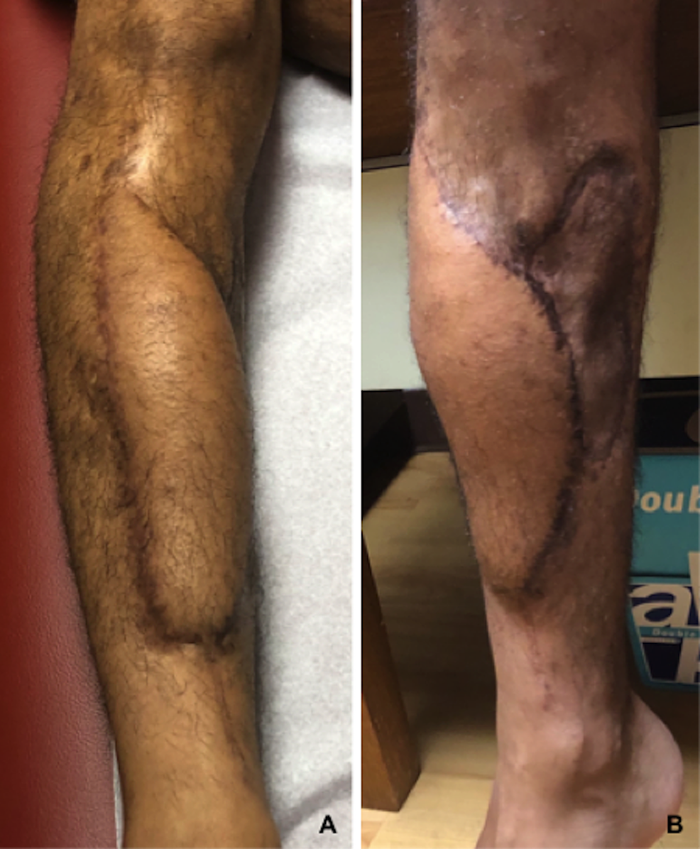 Anterolateral-thigh-free-flap-at-one-year-follow-up