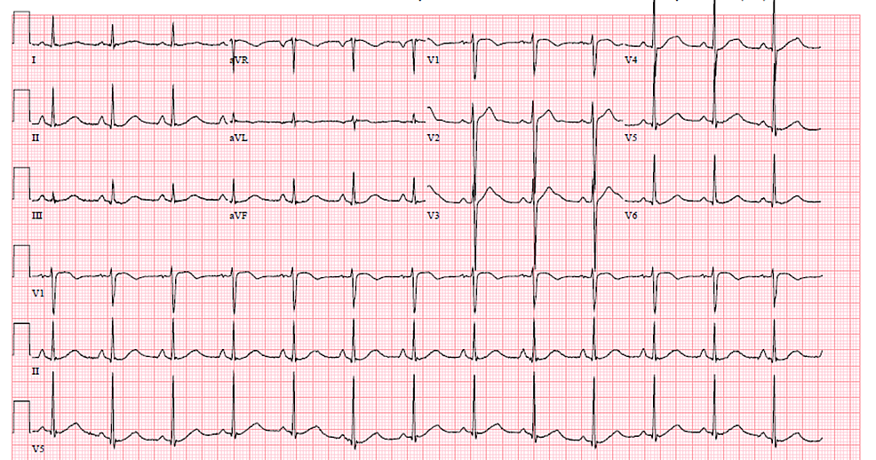 Electrocardiogram-(EKG)-with-QTC-of-525-ms