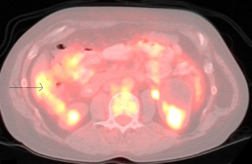 Positron-emission-tomography/computed-tomography-(PET/CT)-showing-the-focal-medial-wall-thickening-in-the-cecum.