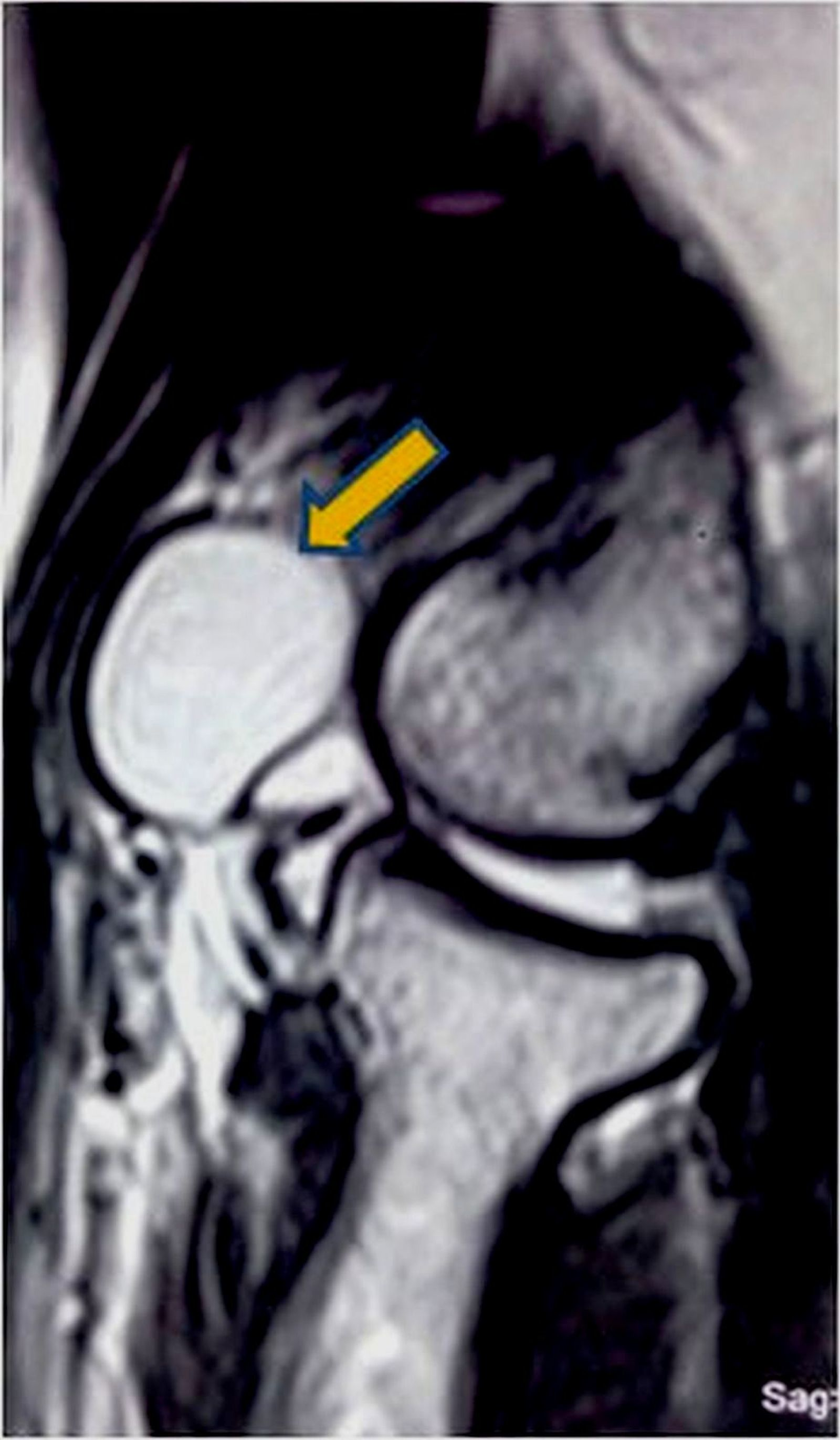 Cureus | A Rare Presentation of Ganglion Cyst of the Elbow