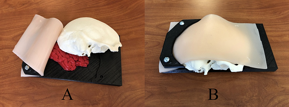 Construction-stages-of-an-emergent-burr-hole/craniotomy-simulator