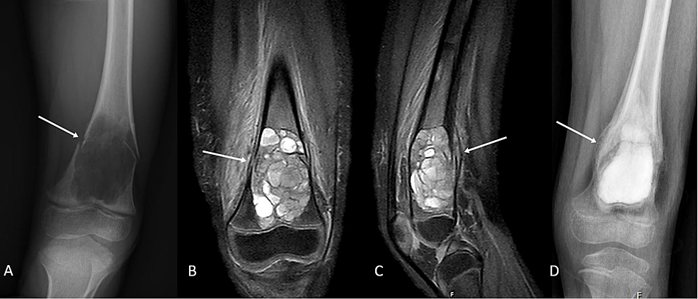 (A)-Plain-anteroposterior-radiographic-film-demonstrating-a-left-femoral-distal-metaphyseal-expansile-lytic-lesion-with-a-fallen-leaf-type-fracture.-(B,C)-Coronal-and-sagittal-magnetic-resonance-(MR)-images-demonstrating-expansile-lesion-of-the-distal-metaphysis-of-the-femur.-No-underlying-soft-tissue-elements-are-noted,-suggesting-the-lesion-is-most-likely-a-primary-aneurysmal-bone-cyst.-(D)-Plain-anteroposterior-radiographic-film-demonstrating-callus-formation-and-postop-changes-at-six-weeks-of-follow-up.