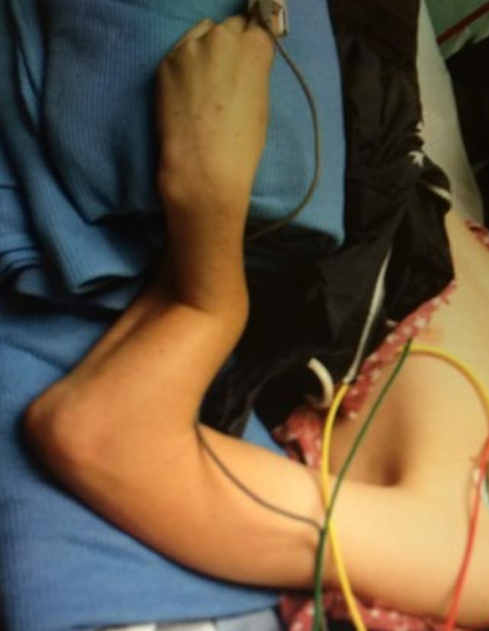 Clinical-photograph-of-the-affected-limb-on-presentation