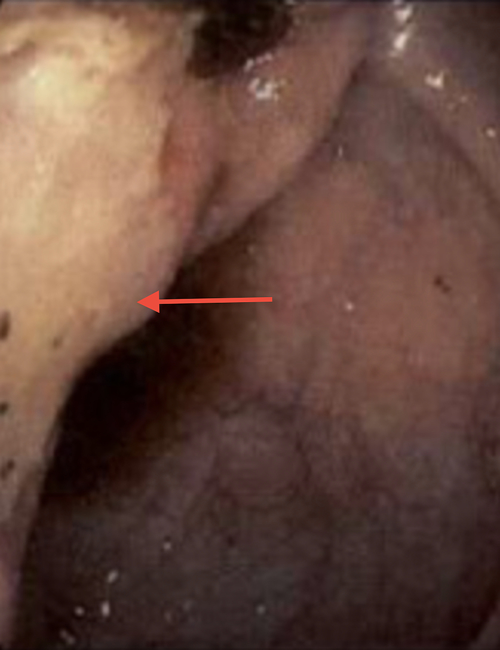 Endoscopic-view-revealing-ulcerated-mucosa-and-edema-at-the-ileocecal-valve.