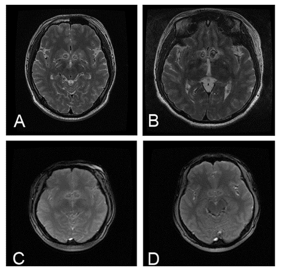 The-postoperative-MRI-images-of-patients.