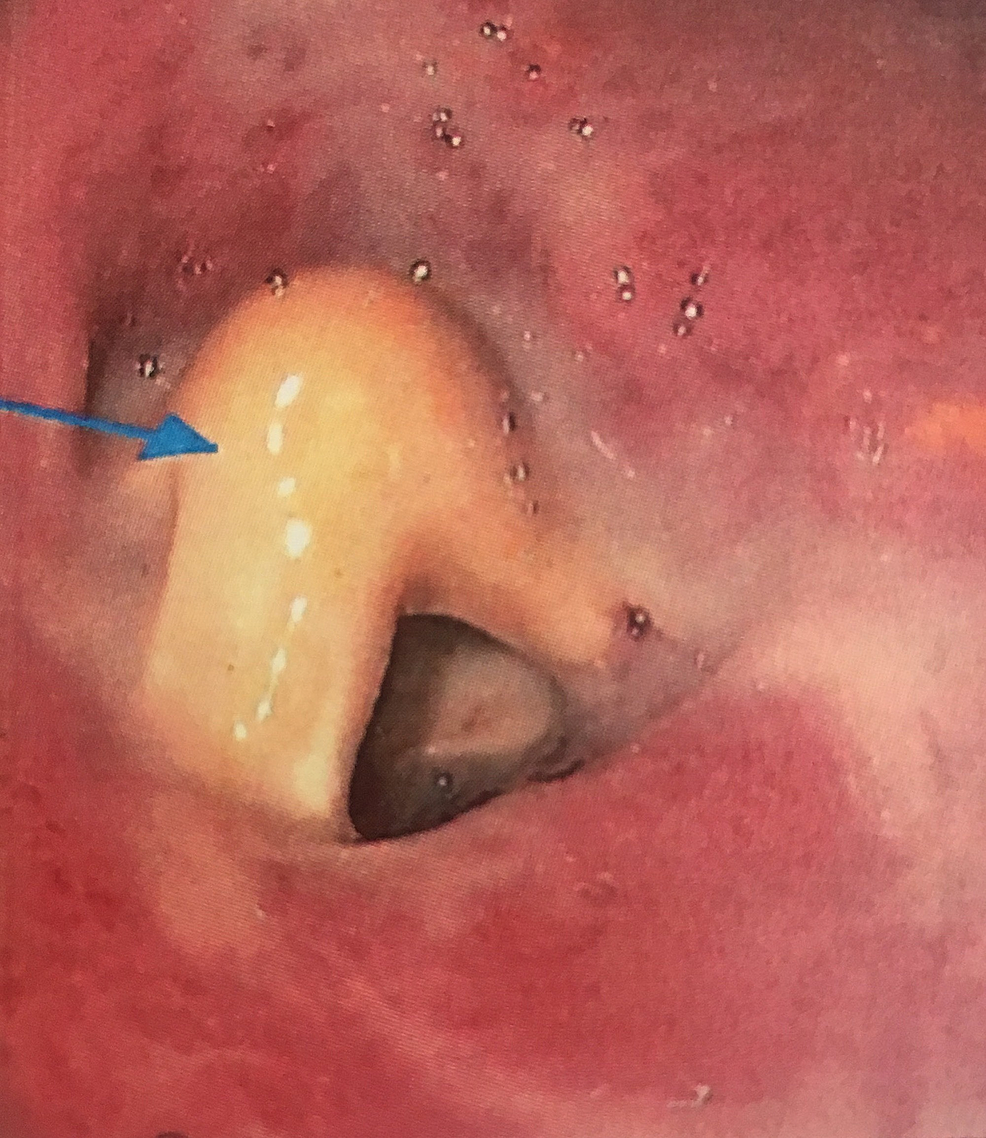 Erosion-of-the-gastrostomy-tube-through-the-stomach-wall-visualized-on-upper-endoscopy