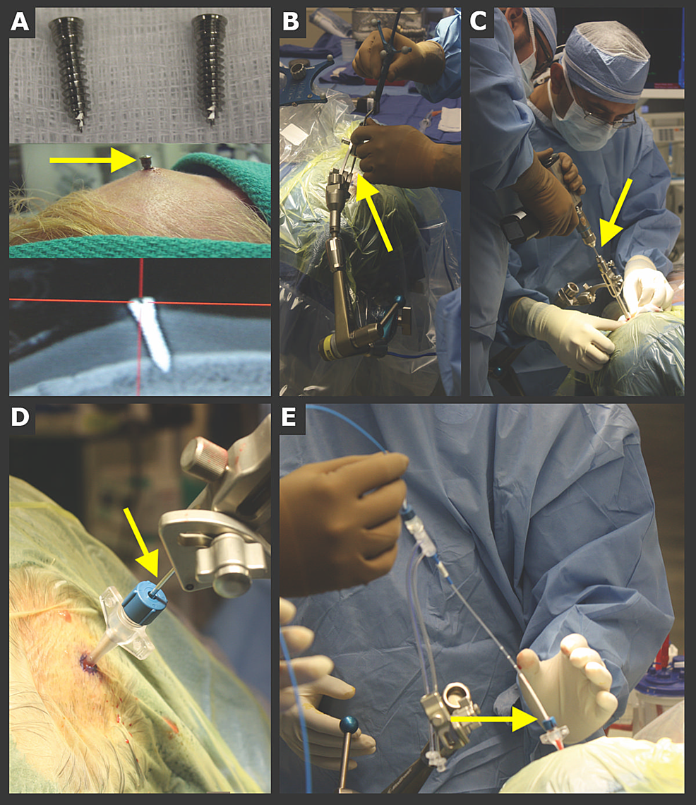Implanted-skull-fiducial-system:-general-steps-for-laser-catheter-placement