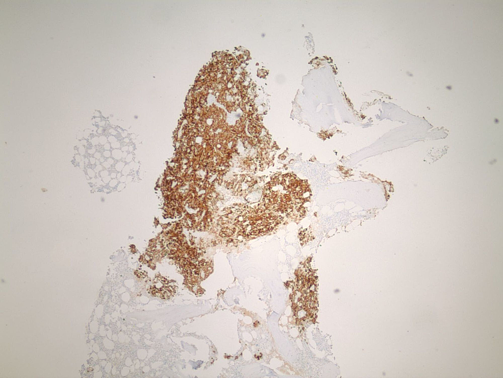 Immuno-histochemical-stains-AE1/AE3-compatible-with-renal-cell-carcinomas