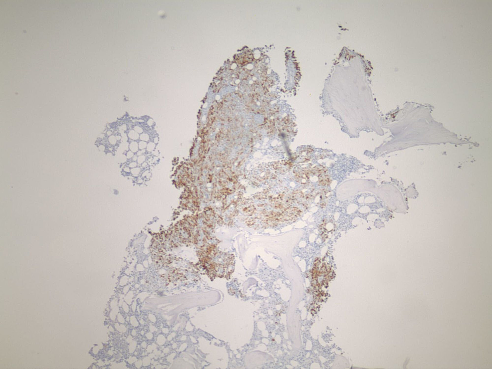 Immuno-histochemical-stains-CK7-compatible-with-renal-cell-carcinomas