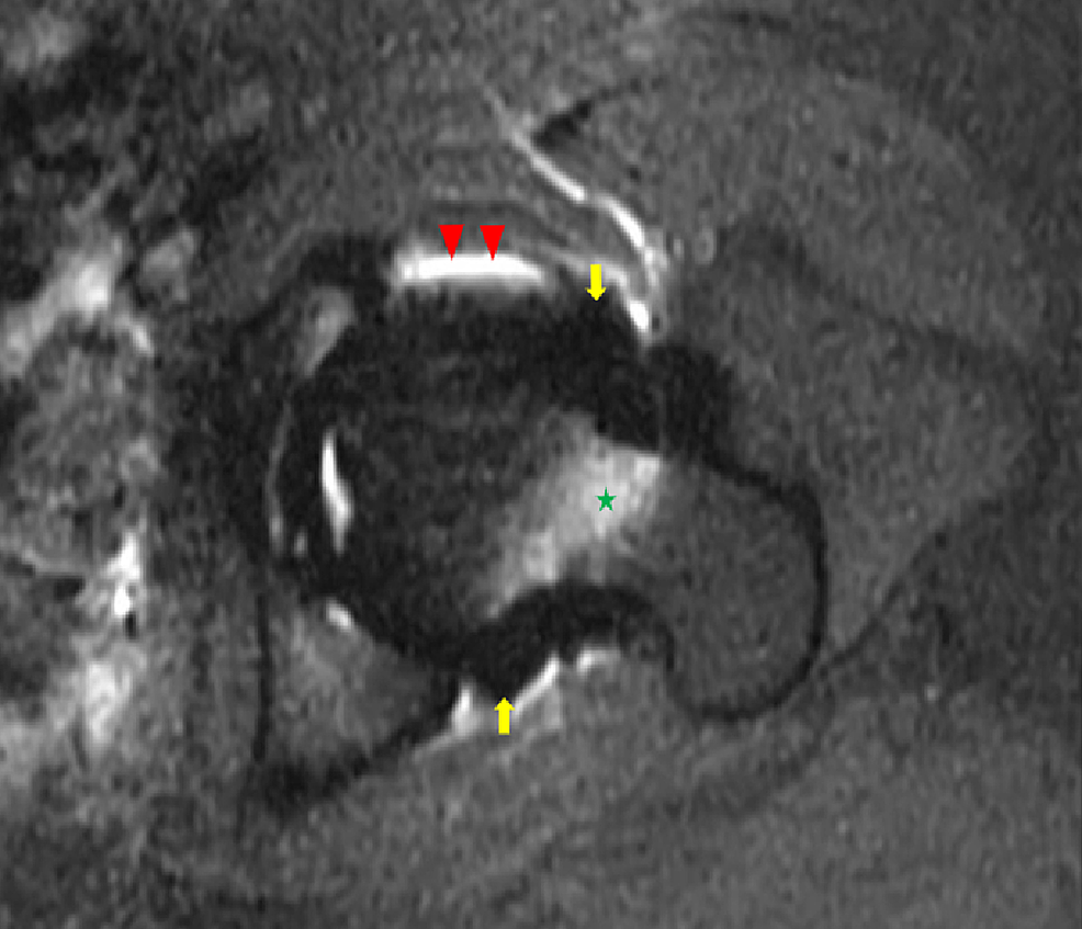 Axial-T1-weighted-fat-saturated-magnetic-resonance-image-of-the-left-hip