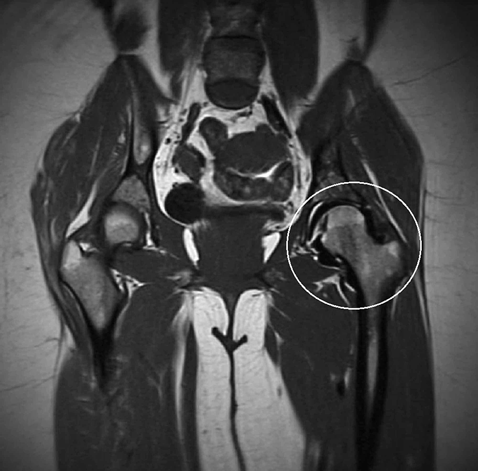 T1-weighted-coronal-magnetic-resonance-image-of-the-pelvis