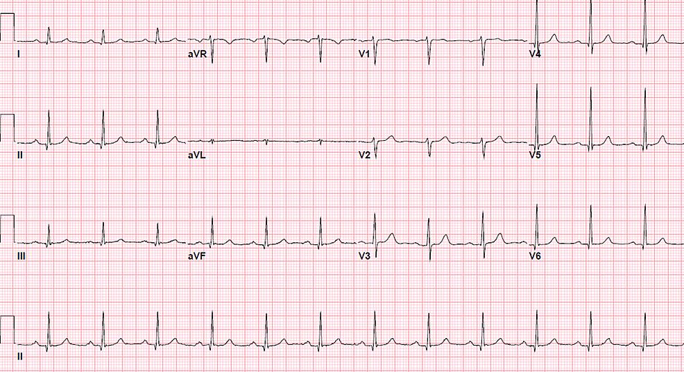 Electrocardiogram-(EKG)-at-presentation-showing-a-normal-sinus-rhythm