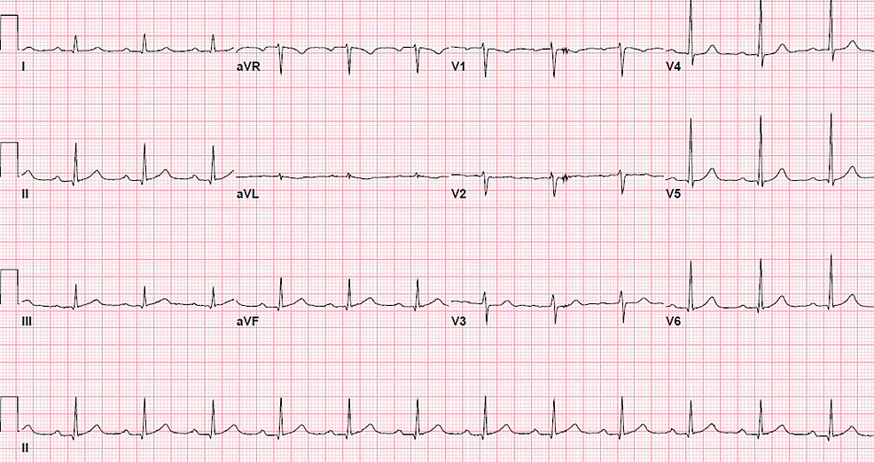 First-degree-heart-block-with-a-PR-interval-of-228-ms.-