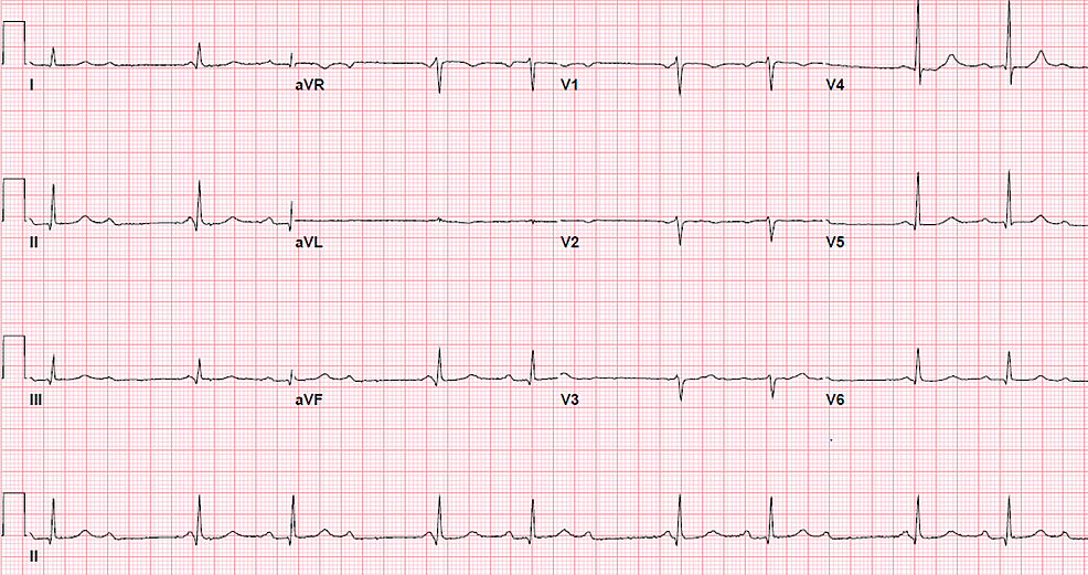 The-following-electrocardiogram-three-hours-later-had-progressed-to-a-second-degree-(type-1)-heart-block