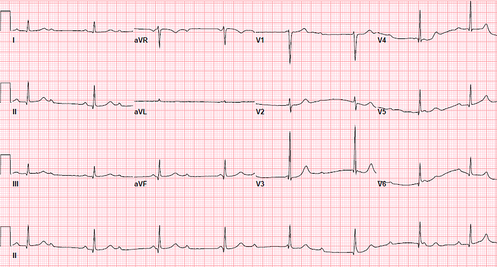 A-subsequent-electrocardiogram-six-hours-later-showed-a-complete-(third-degree)-heart-block