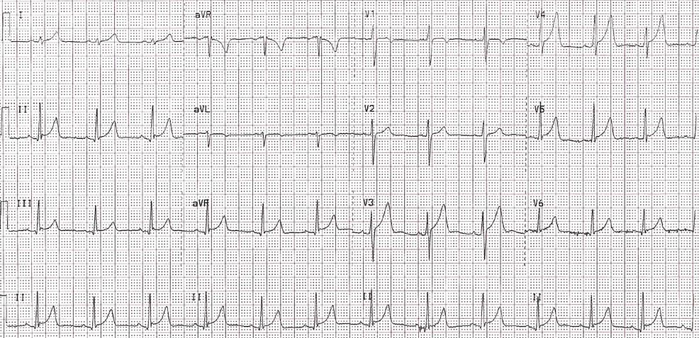 ECG-from-initial-outpatient-clinic-visit-showing-extensive-ST-elevations,-suggestive-of-possible-pericarditis