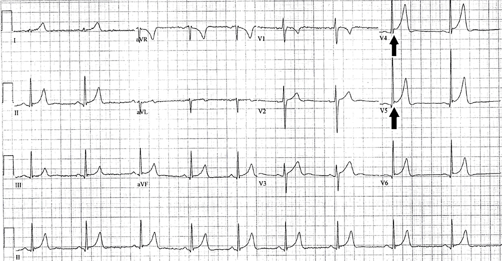 ECG-showing-bradycardia-with-ER-morphology-from-ED-visit-for-abdominal-pain-one-year-prior-to-initial-outpatient-presentation