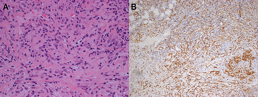 Samples-of-excisional-biopsies-showing-inflammatory-myofibroblastic-tumor.