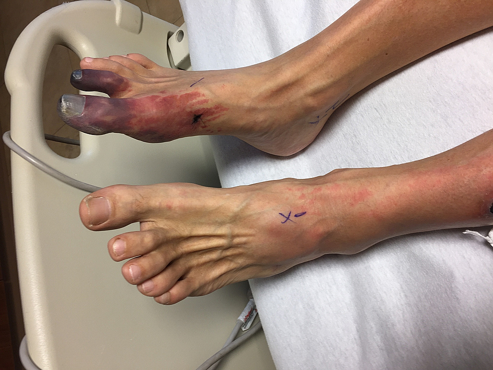 Ischemic-lesion-to-the-right-foot-