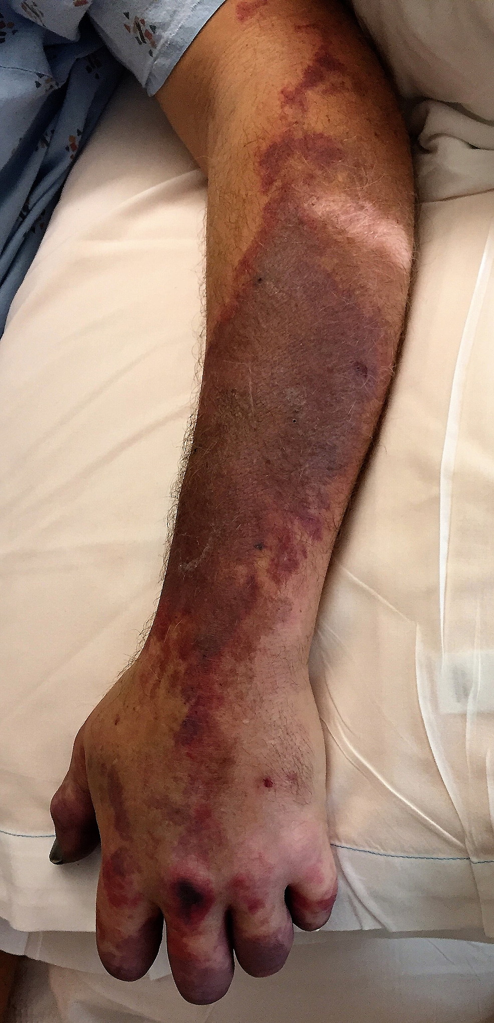 Rapidly-progressive-ischemia-extending-over-the-left-forearm