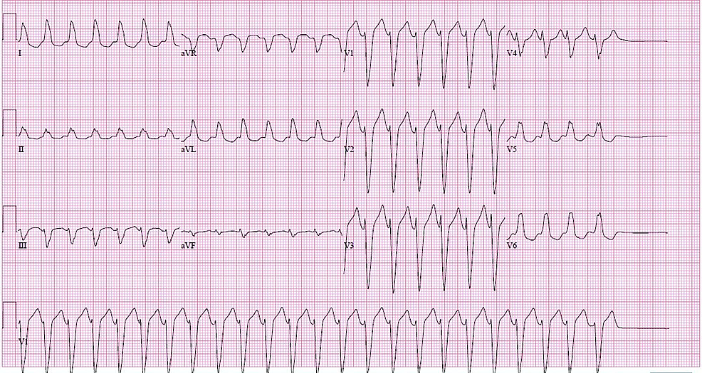 12-lead-electrocardiogram-(EKG)-showing-regular-wide-complex-tachycardia-with-ventricular-rate-of-156-beats-per-minute