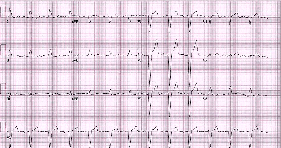 12-lead-electrocardiogram-(EKG)-showing-sinus-rhythm-with-rate-of-78-beats-per-minute,-first-degree-atrioventricular-block,-and-left-bundle-branch-block-(LBBB)