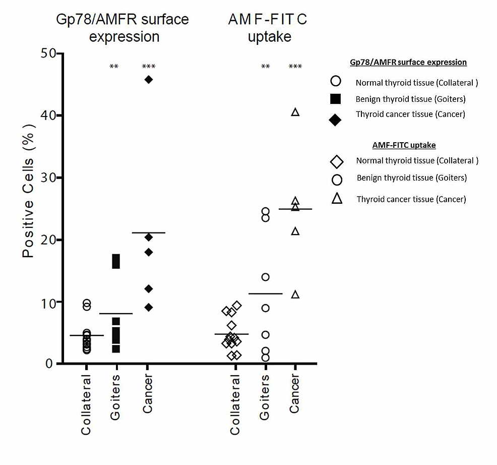 Gp78/AMFR-surface-expression-and-AMF-internalization-in-malignant,-benign-and-normal-thyroid-tissues
