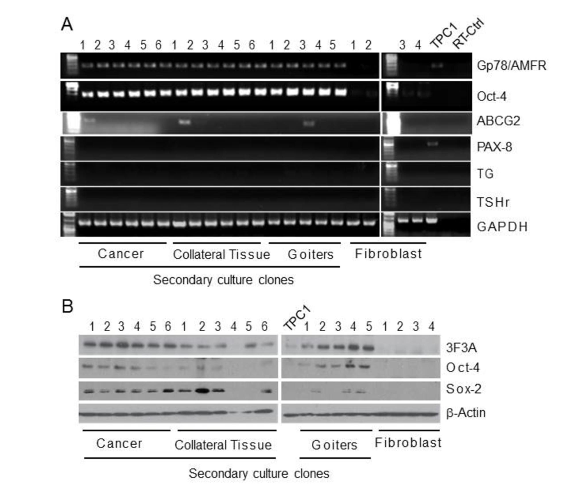 Cureus   Expression of Gp78/Autocrine Motility Factor