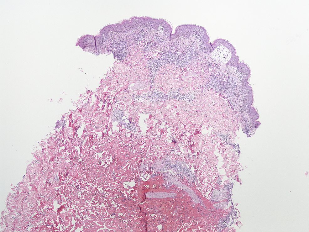 Skin-biopsy-on-low-magnification