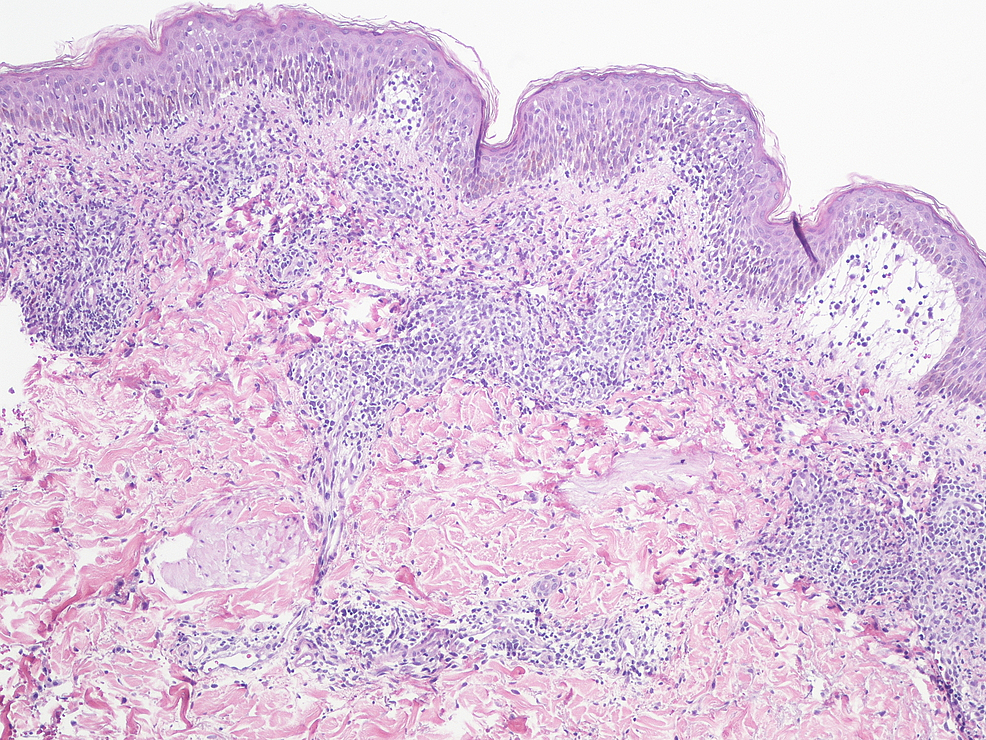 Skin-biopsy-on-high-magnification-(x100)