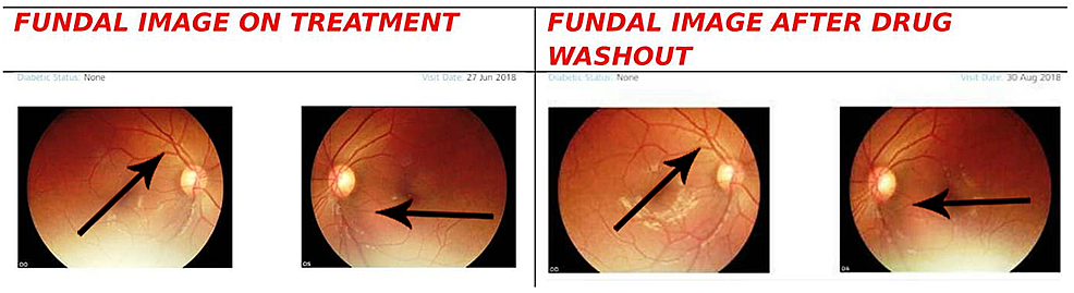 Fundal-scan-after-one-month-of-therapy-and-10-days-after-drug-wash-out-period