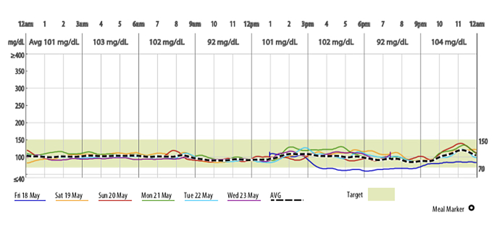Continuous-glucose-monitoring-system-data-assessed-over-13-weeks