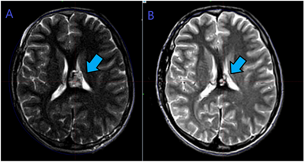 """A.-MRI-brain-T2-sequence-showing-the-""""pop-corn-appearance""""-of-cavernous-angioma.-Left-medial-parietal-area-involving-the-corpus-callosum-at-the-time-of-Gamma-Knife-radiosurgery-treatment.-B.-MRI-axial-cut-T2-sequence-showing-more-than-50%-regression-in-the-lesion-size,-six-years-after-the-Gamma-Knife-treatment."""